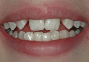 Before Smile - Female